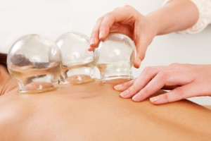 Cupping photo, Colorado Springs acupuncturist