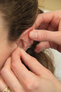what is acupuncture, Colorado Springs acupuncturist